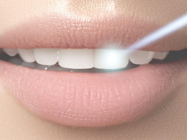 أشعة الليزر في عيادة الأسنان