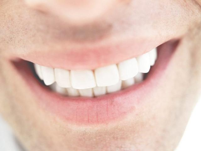 الأسنان البيضاء التي تحلمون بها